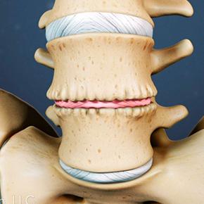 椎間板ヘルニア|腰椎と椎間板と変性している椎間板の絵