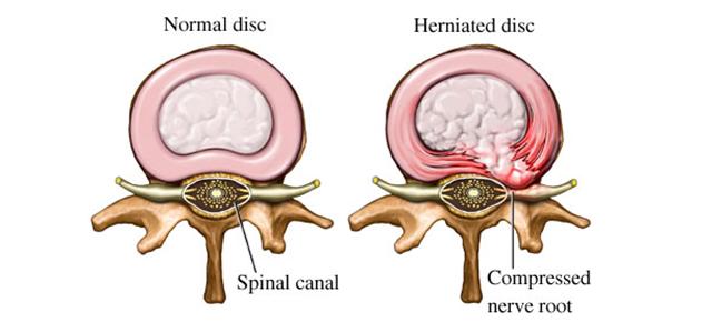 椎間板ヘルニア|正常な椎間板とヘルニアが起こっている椎間板
